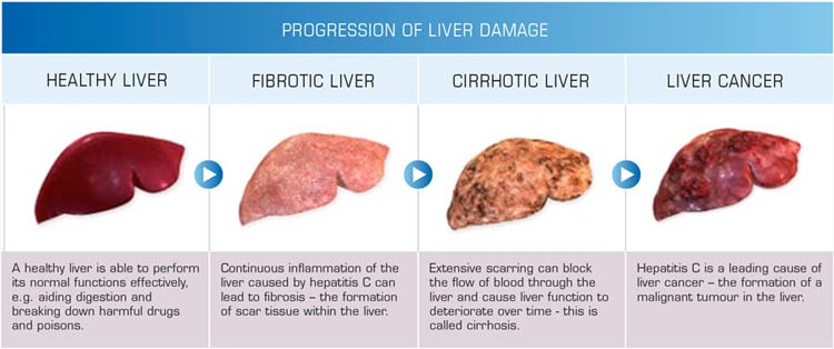 progression-of-liver-disease