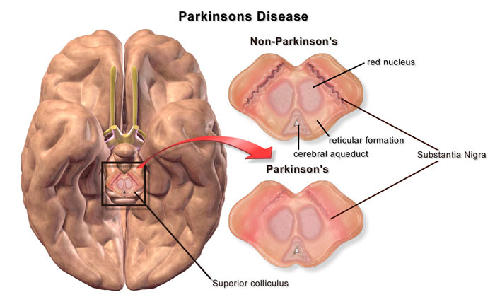 treat_ParkinsonsDisease